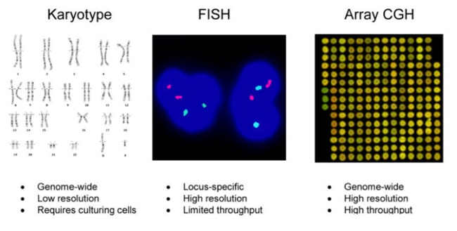 Karyotype – FISH – Array CGH