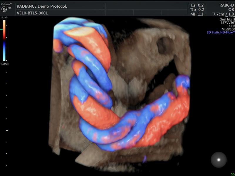 Cordone ombelicale visto in 3D