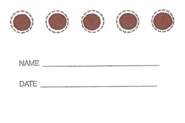 Gocce di sangue essiccato per lo screening